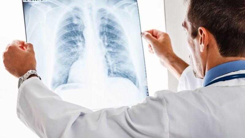 Cidadã pede que a Policlínica Regional inclua no seu quadro médico pneumologista