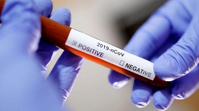 Coronavírus perde força na Bahia e em mais três estados, mostra estudo